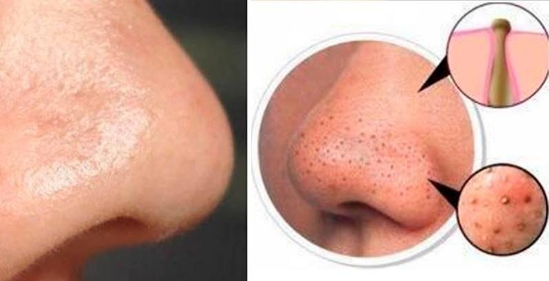 Eliminar puntos negros de la nariz 2