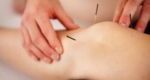Cómo eliminar el dolor de las rodillas