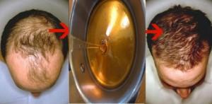 Como eliminar la calvicie